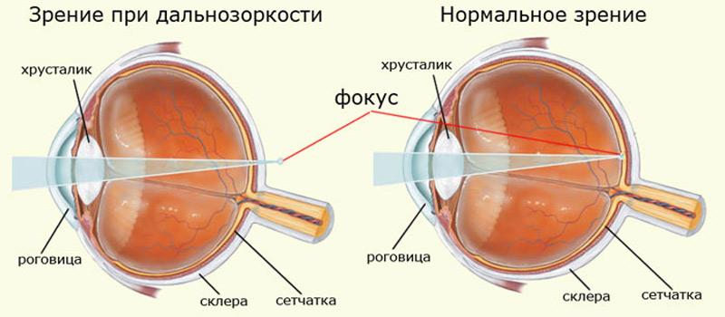 Что делать чтобы зрение стало лучше
