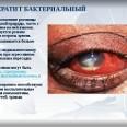 Лечение бактериального кератита